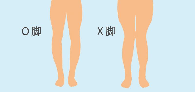 O脚、X脚のイラスト